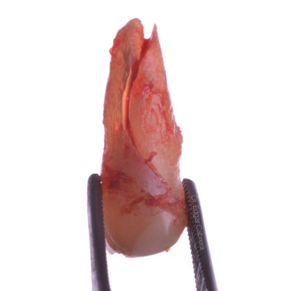 Cirugía Dentoalveolar o Cirugía Oral Menor