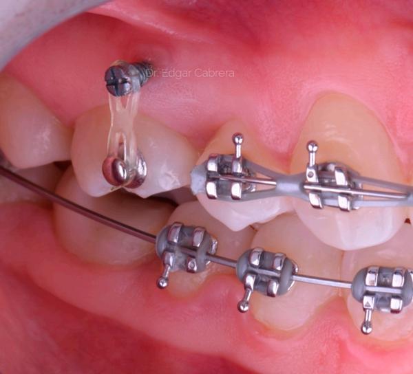 Manejo-Odontocico-Quirurgico-2
