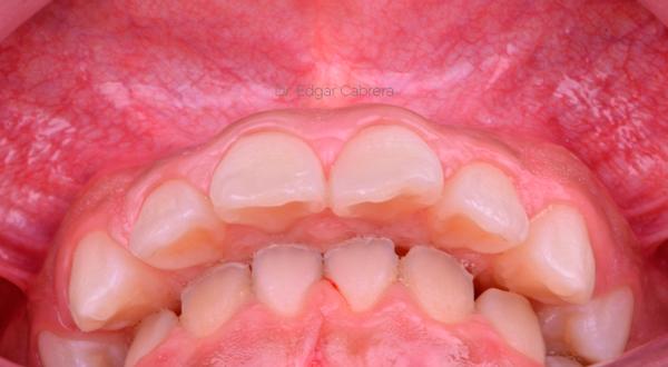 Manejo-Odontocico-Quirurgico