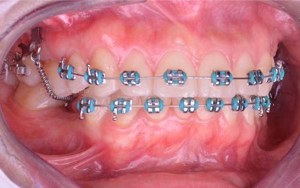 Objetivos-prequirurgicos-1