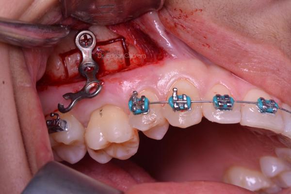 Objetivos-prequirurgicos